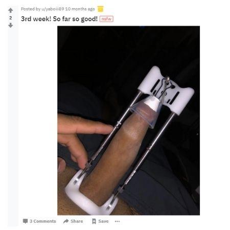 Results penis hanging Sizegenetics Before